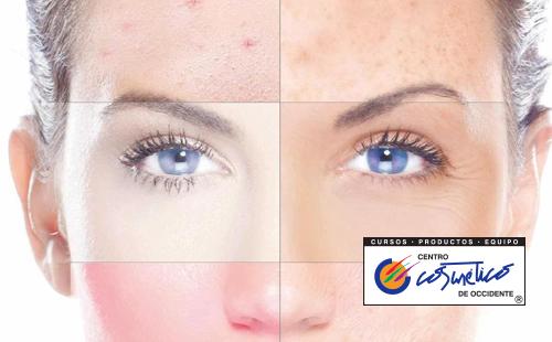 Cómo saber si un maquillaje me está creando alergia?